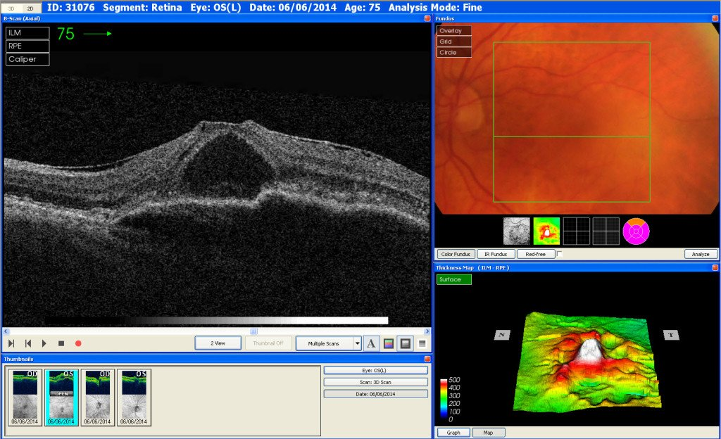 This is a scan of an eye with Wet AMD
