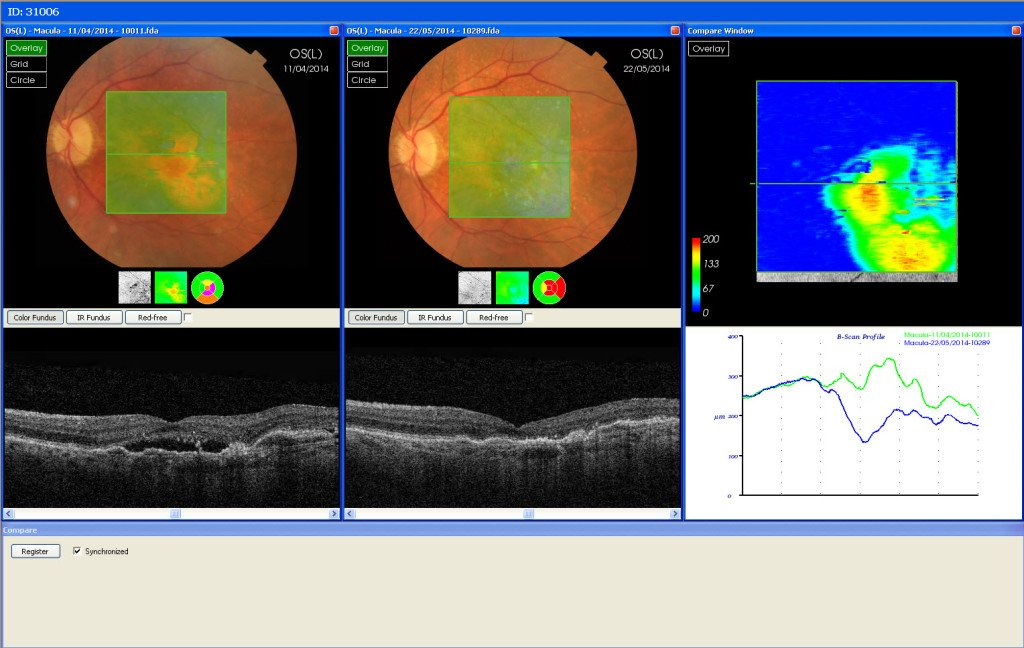 Wet AMD before and after 1 Lucentis injection